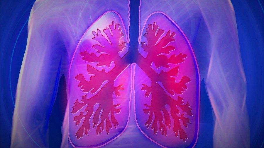 cancer-de-pulmón