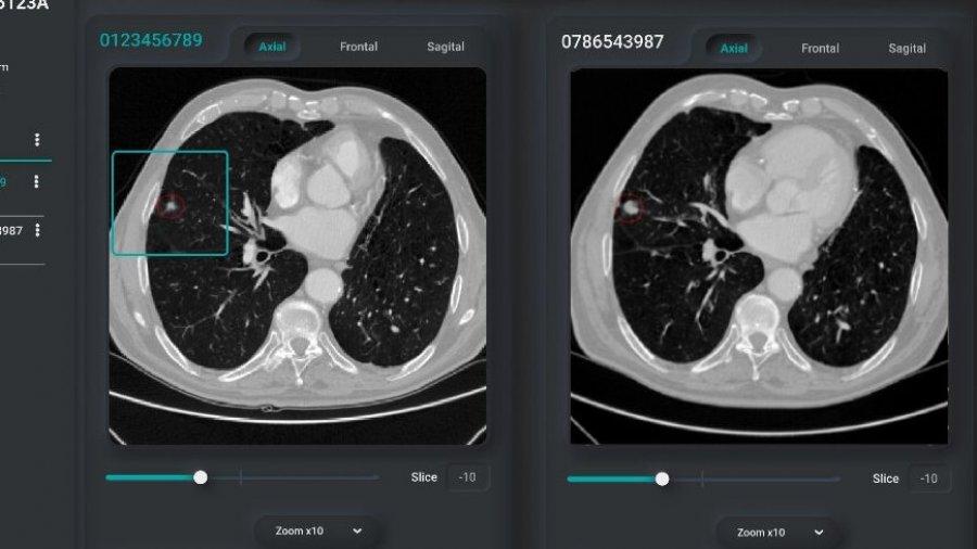 deep-lung